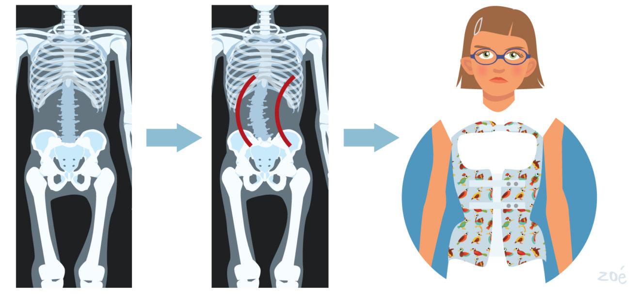 illustration corset scoliose